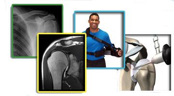 ortopedia-spalla