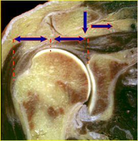 patologia-della-cuffia-dei-rotatori