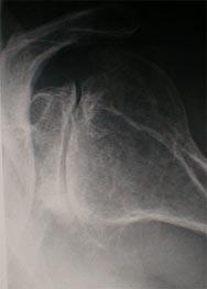 Artrosi centrata